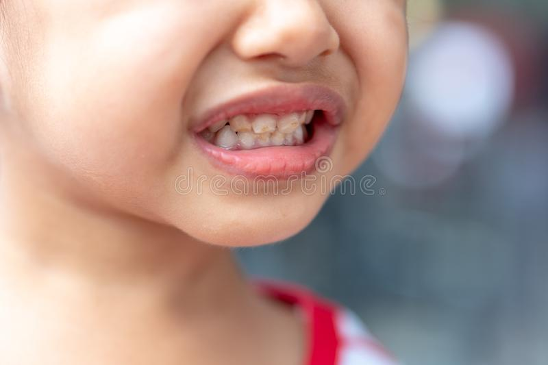 Asian little girl has decayed baby teeth stock images