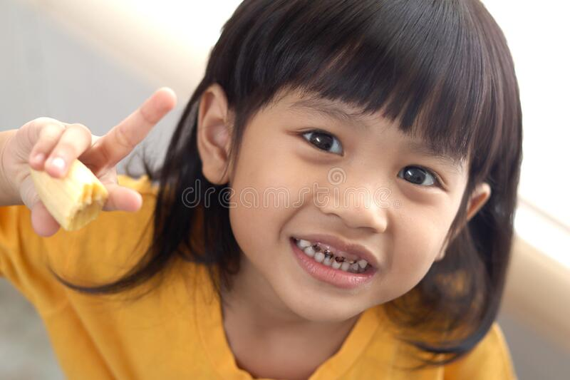 Asian little girl showing her open mouth full of caries teeth decay. Dental medicine and healthcare. caries from an early age stock photos