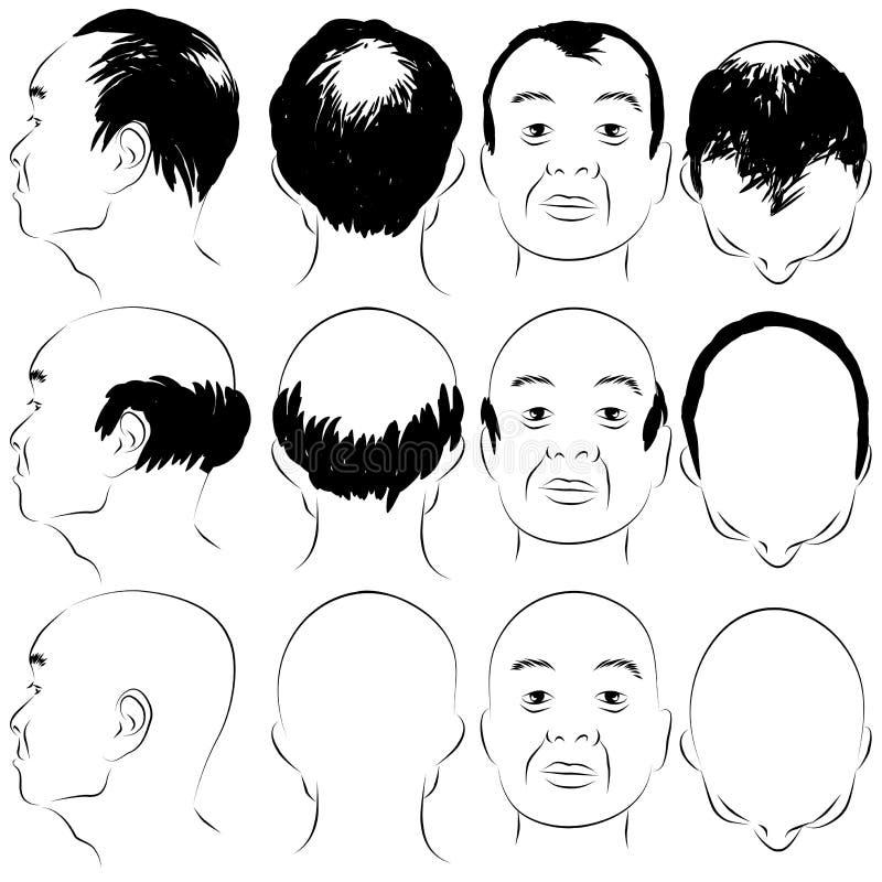 Asian Male Baldness Pattern Royalty Free Stock Photography