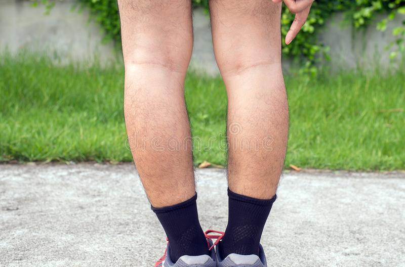 Asian man leg bandy-legged shape of legs. Asian man leg bandy-legged shape of the legs royalty free stock images