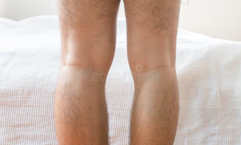 Asian man leg bandy-legged shape of the legs. Close up royalty free stock image