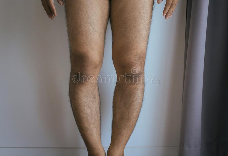 Asian Man Leg Bandy-legged Shape Of The Leg Stock Photo ...