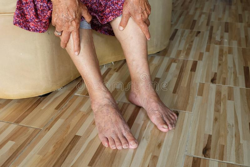 Asian old woman holding a leg that pain from varicose veins on the legs royalty free stock photography