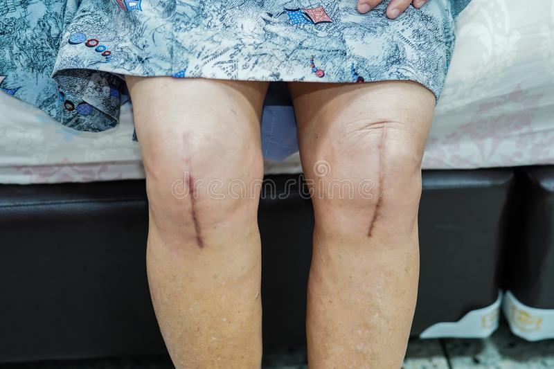 Asian senior lady old woman patient show her scars surgical total knee joint replacement. Asian senior or elderly old lady woman patient show her scars surgical stock photo