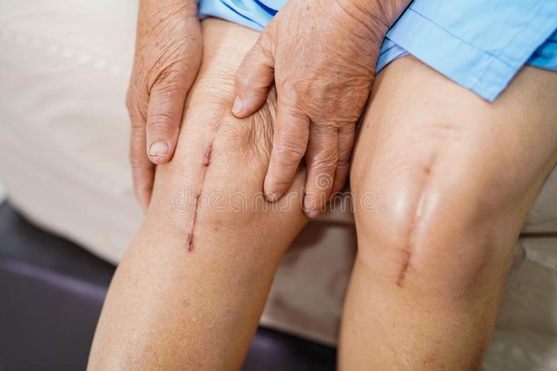 Asian senior or elderly old lady woman patient show her scars surgical total knee joint replacement Suture wound surgery. Arthroplasty on bed in nursing stock images