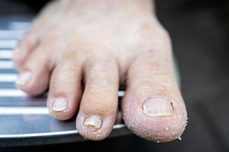 Asian senior woman have dry, cracked feet and broken nails in the elderly,old people dry skin, lack of nourishment, lack of. Moisture in the skin, flaky skin stock photos