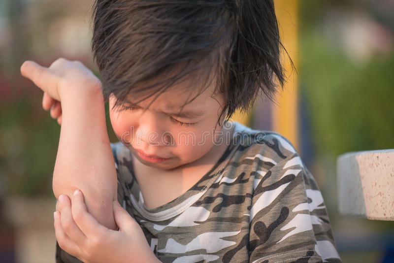 Asiatisches Kind verletzt am Ellbogen stockfotos