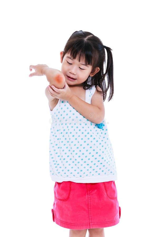 Asiatisches Kind verletzt am Ellbogen Getrennt auf weißem Hintergrund lizenzfreies stockfoto