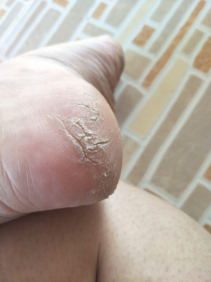 Asiatisches woman& x27; s-Beine, Haut knackten auf die Ferse stockbilder