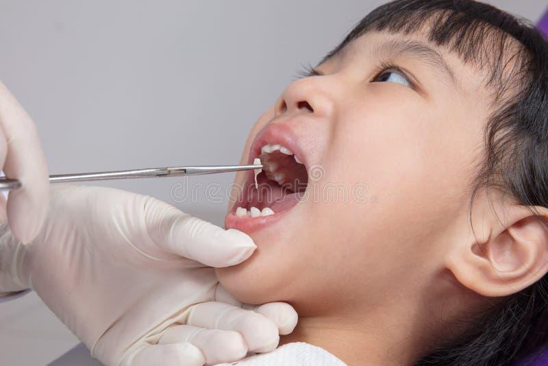 Asiatisk kinesisk liten flicka som ner ligger för tandextraktion arkivbild