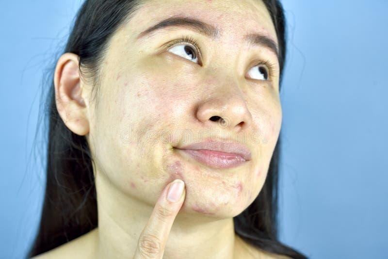 Asiatisk kvinnafingerpunkt på whiteheadakne på hakan, vuxet bekymmer om ansikts- hudproblem royaltyfri fotografi