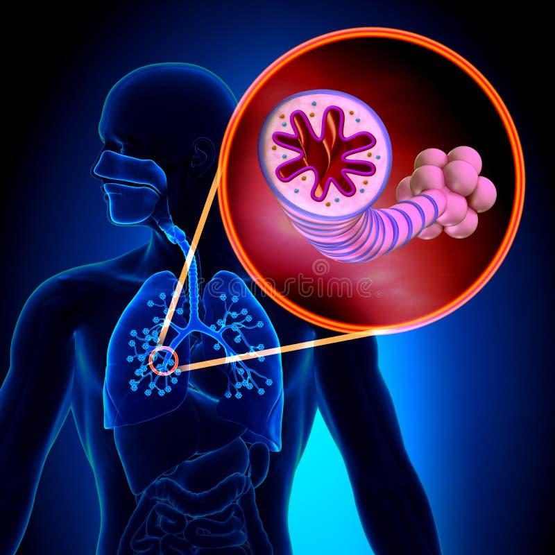 Asma - enfermedad inflamatoria crónica - anatomía ilustración del vector