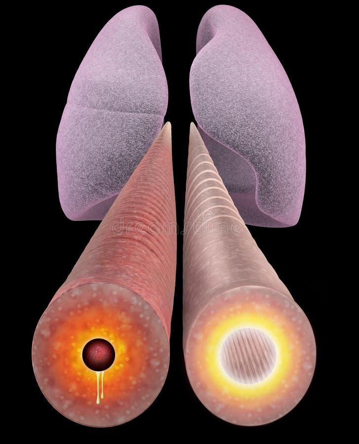 Asma, sección bronquial, pulmón ilustración del vector