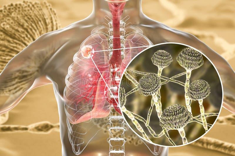 Aspergilloma av lunga- och närbildsikten av Aspergillussvampar royaltyfri illustrationer
