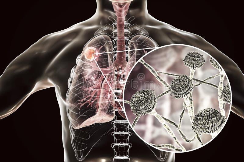 Aspergilloma av lunga- och närbildsikten av Aspergillussvampar vektor illustrationer