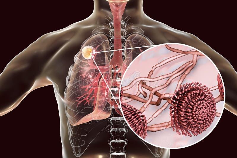 Aspergilloma av lungan vektor illustrationer
