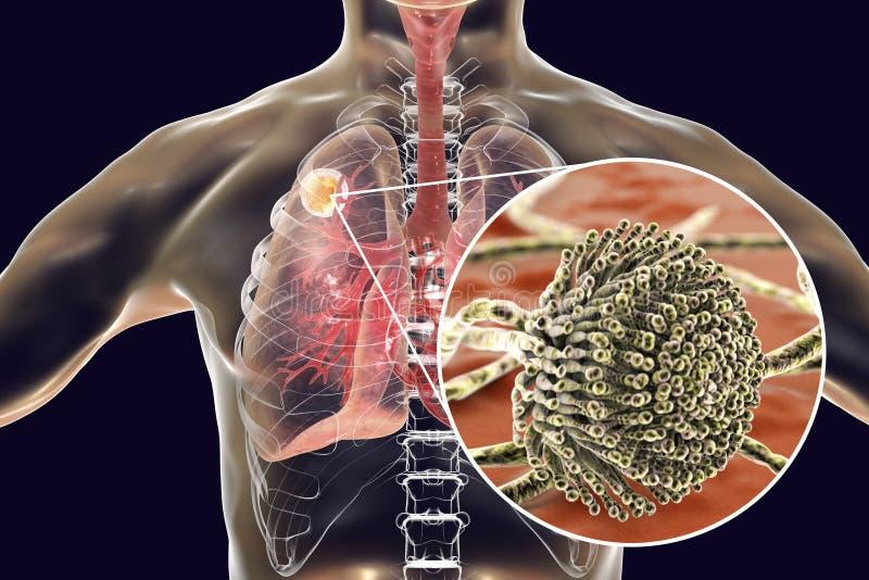 Aspergilloma av lungan stock illustrationer