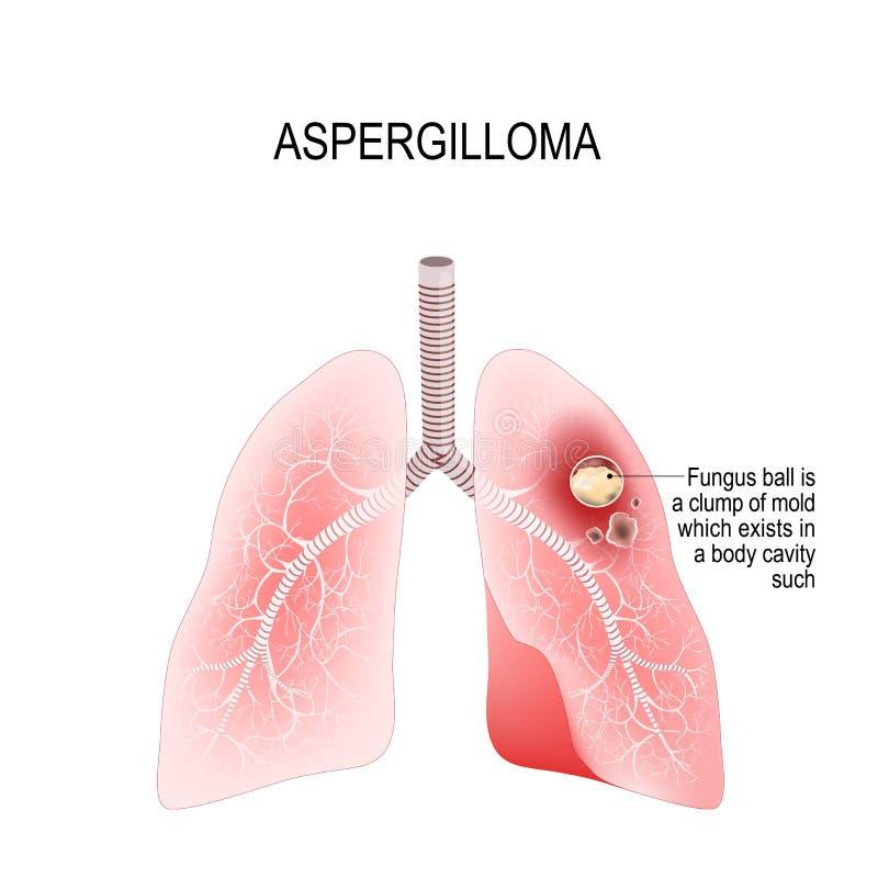 Aspergilloma Lungor av människan med en svamp boll stock illustrationer