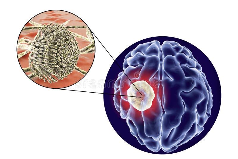 Aspergillome de la vue de cerveau et de plan rapproché de l'aspergille de champignons illustration stock