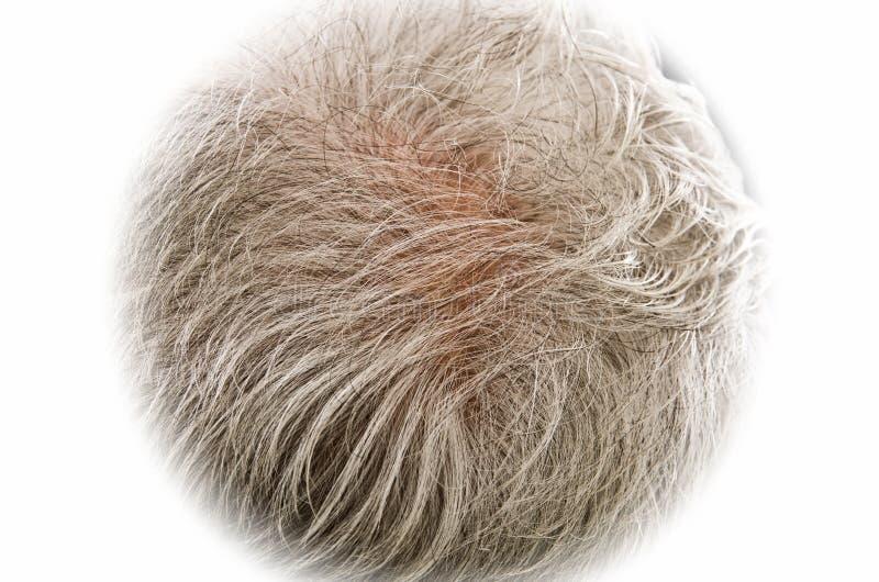Assottigliamento dei capelli fotografia stock