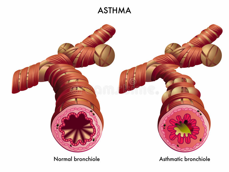 Asthma. Medical illustration of the effects of the Asthma vector illustration