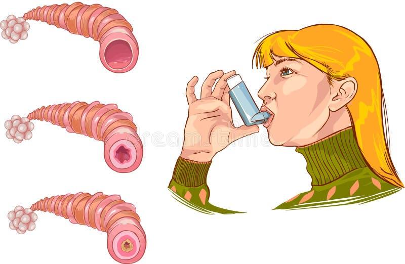 Asthma vektor abbildung