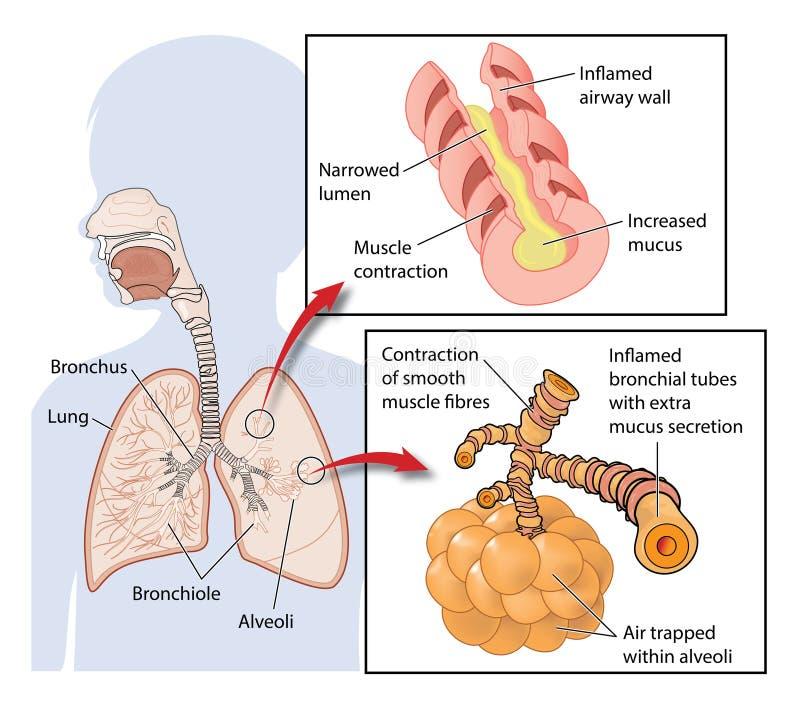 Asthma Stock Vector Illustration Of Bronchus Asthma 95555154