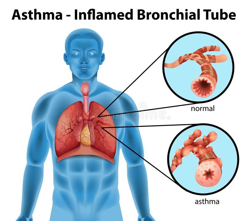 Asthma-entflammtes bronchiales Rohr vektor abbildung