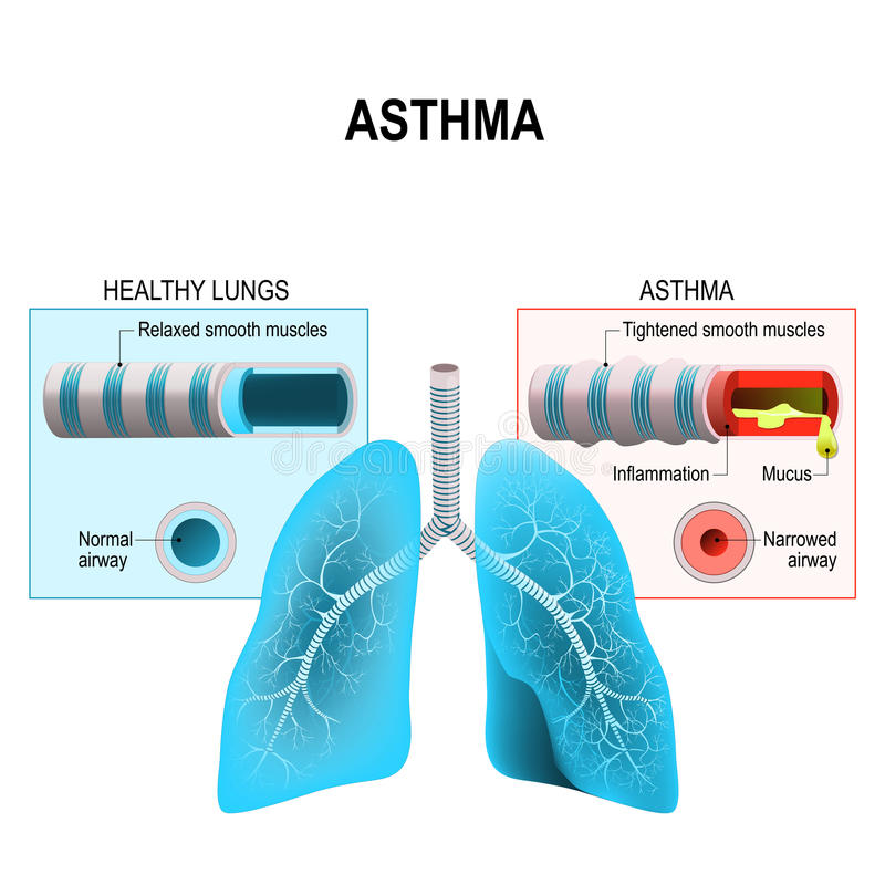 Asthma. Humans lungs and bronchi stock illustration