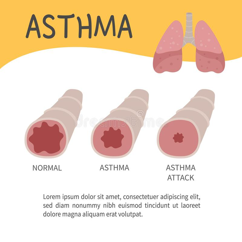 Asthma infographic. The concept of an attack of asthma. Illustration of bronchi. Template for medical brochures, magazines, posters stock illustration