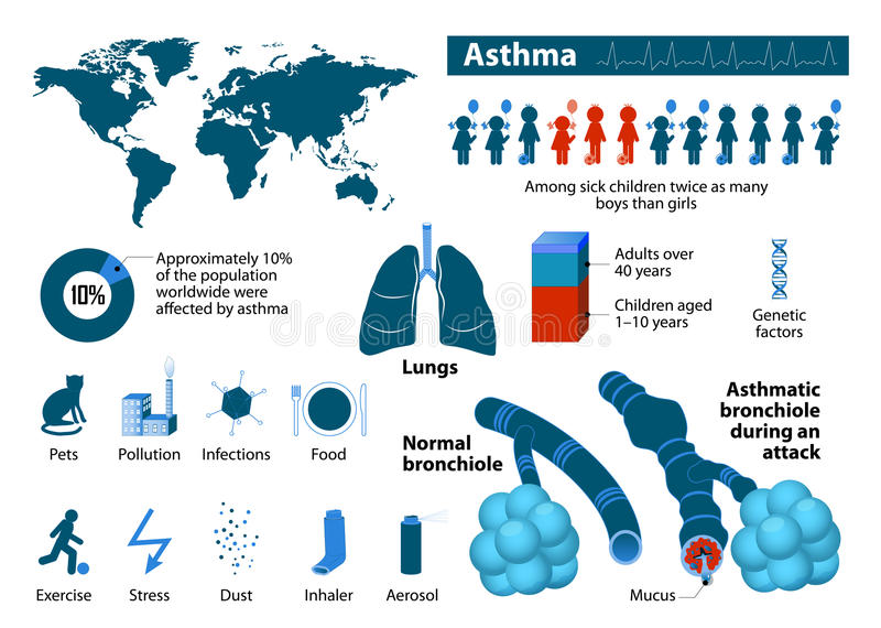 Asthma infographic royalty free illustration