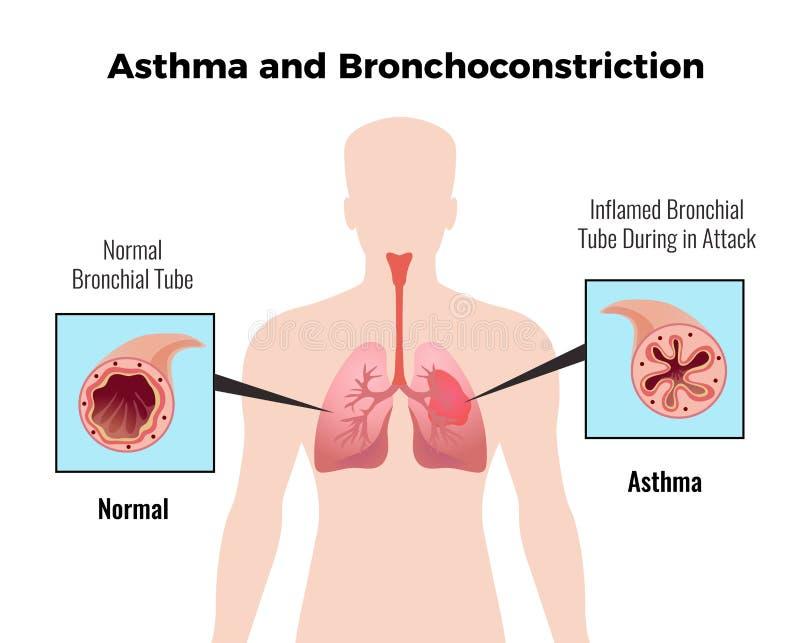 Asthma Medical Poster vector illustration