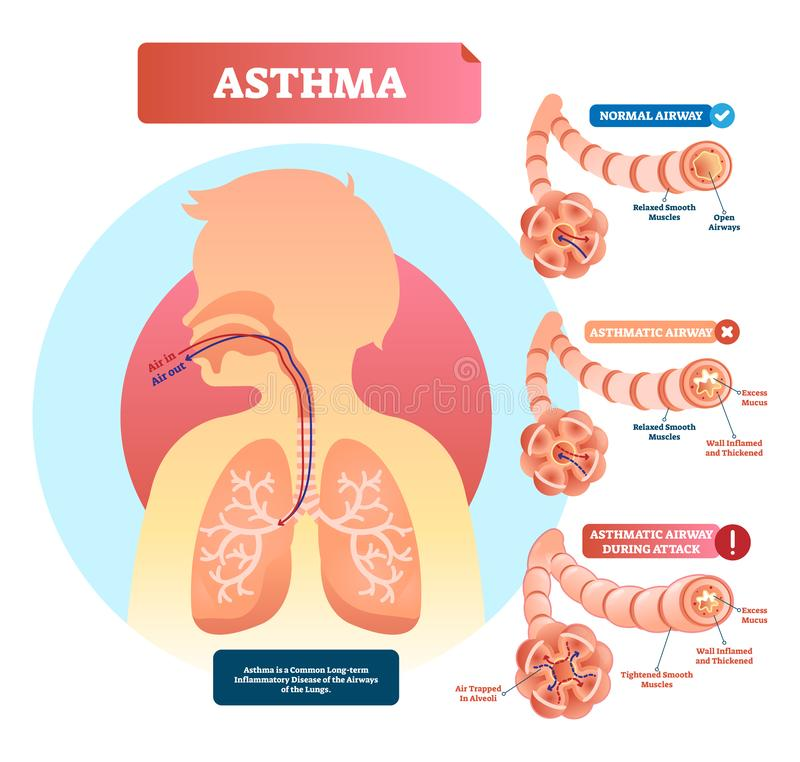 Asthma vector illustration. Disease with breathing problems diagram.. royalty free illustration