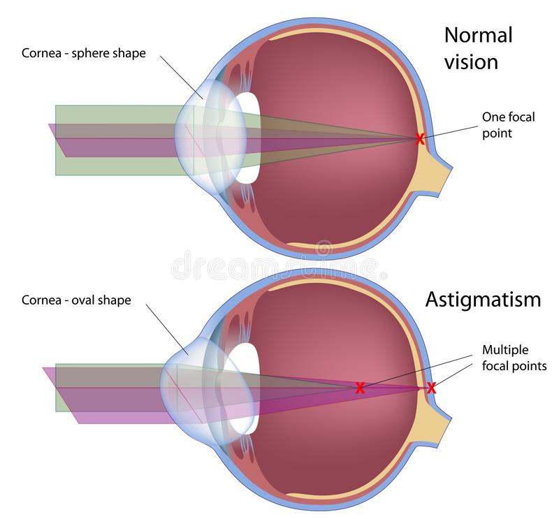 Download Astigmatism stock vector. Illustration of astigmatism - 19558737