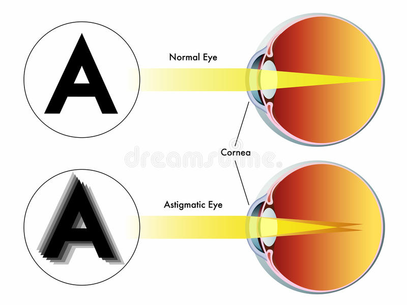 Astigmatism. Medical illustration of the symptoms of astigmatism royalty free illustration