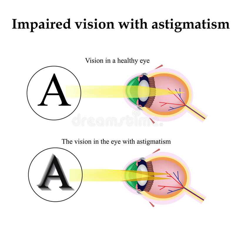 Astigmatism. As the eye can see with astigmatism. Impaired vision vector illustration