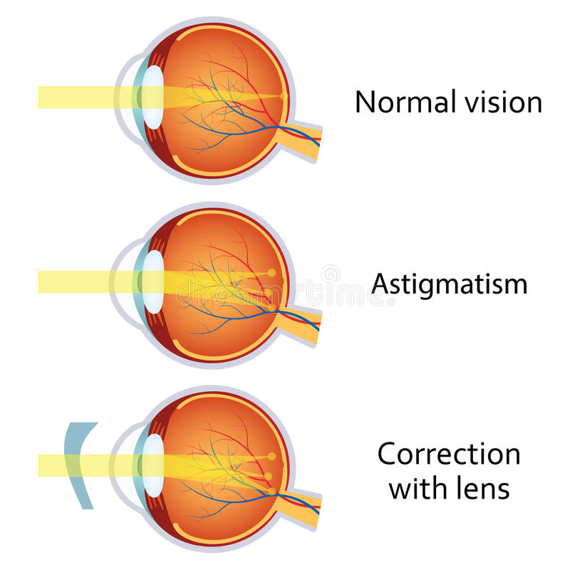 Astigmatism Corrected By A Cylindrical Lens Stock Vector