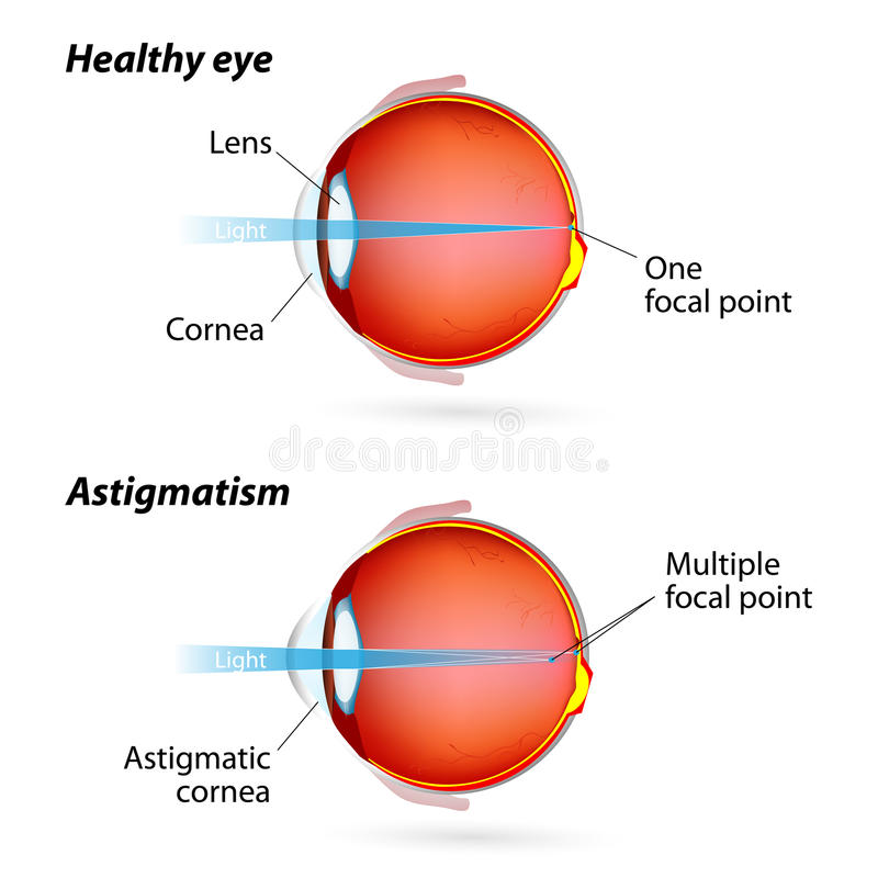 Astigmatism. Eye disease. Healthy eye and Astigmatic eye stock illustration