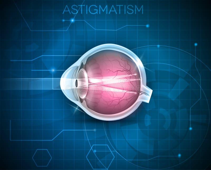 Astigmatisme, zichtprobleem vector illustratie