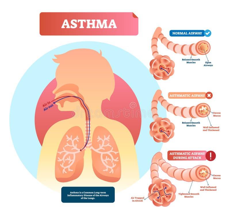 Astma wektoru ilustracja Choroba z oddychanie problemów diagramem royalty ilustracja