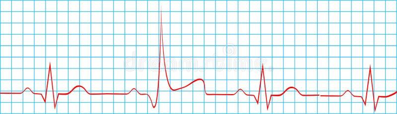 Ataka Serca uderzenie Na elektrokardiograma rejestrze royalty ilustracja