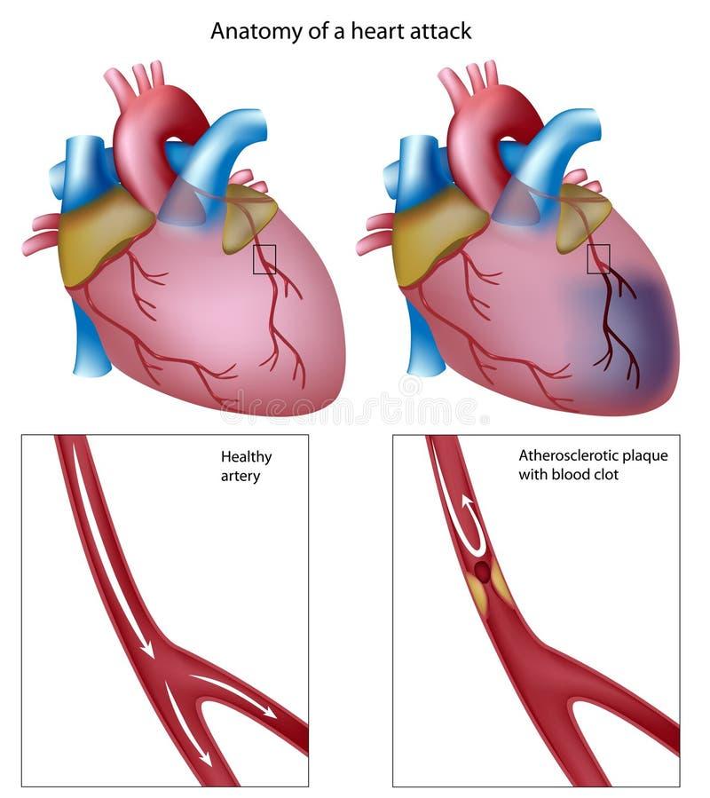Ataque del corazón ilustración del vector
