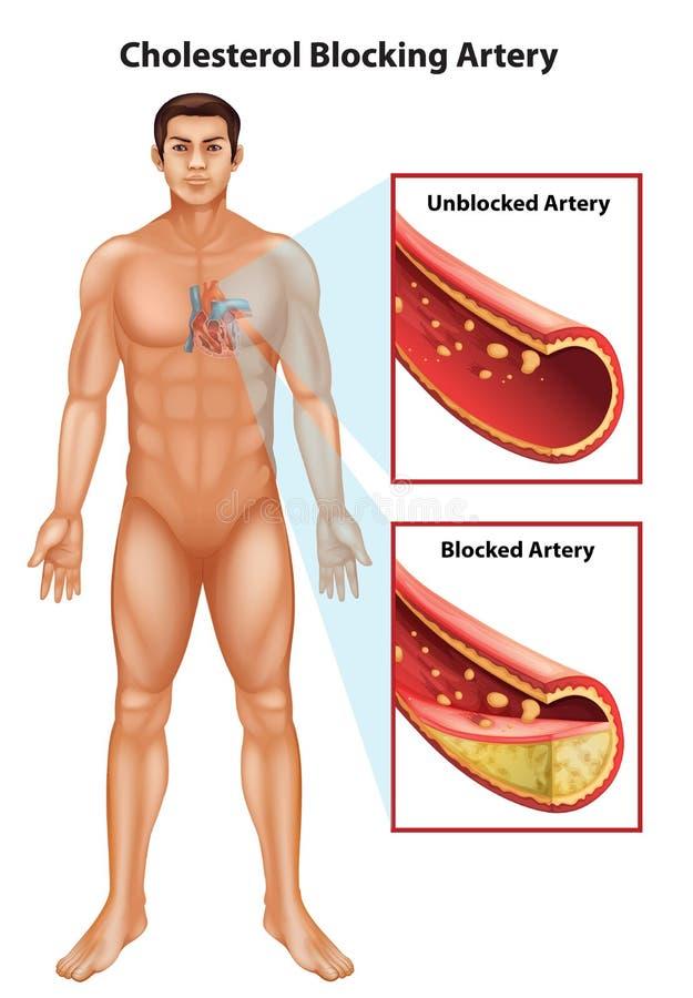 Ateriosclerosis ilustración del vector