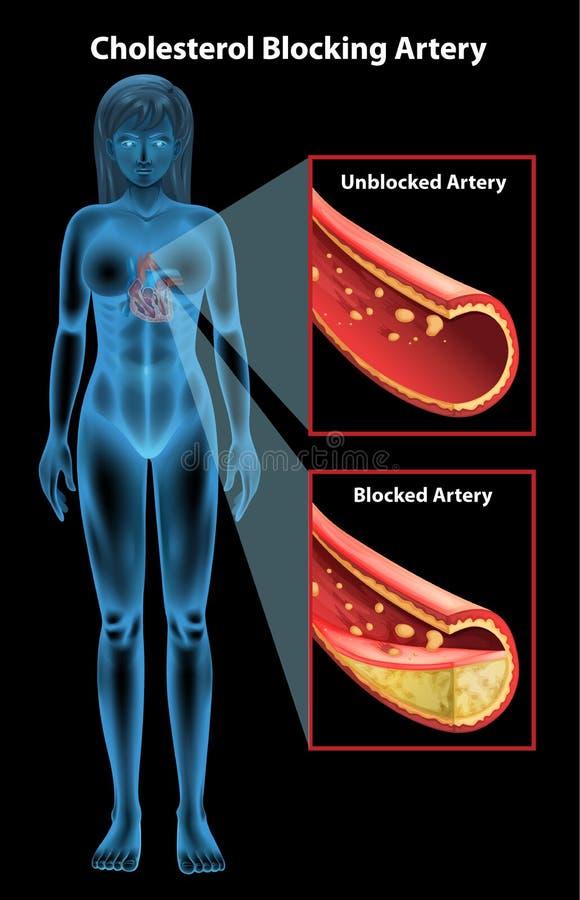 Ateriosclerosis stock de ilustración