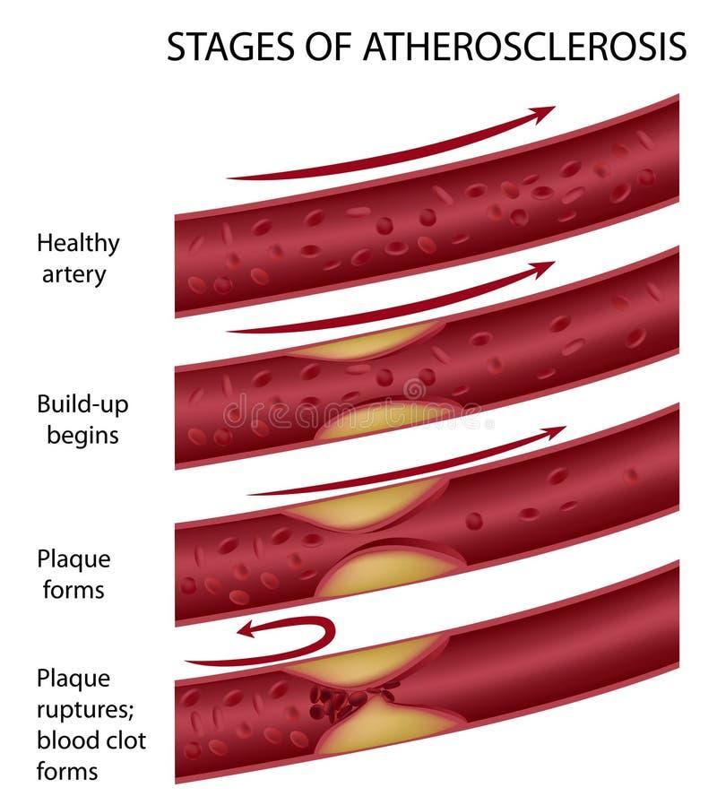 Ateroesclerosis ilustración del vector