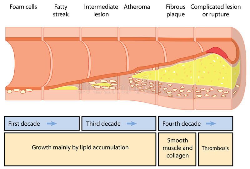 Atheroma formation. Development of an atheromatous plaque in an artery over four decades. Created in Adobe Illustrator. EPS 10 stock illustration