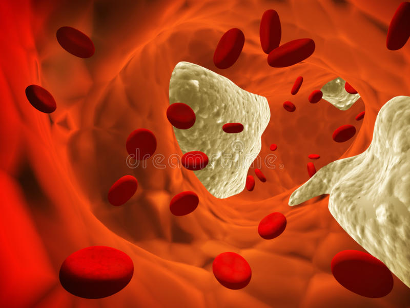 Atherosclerose stock illustratie
