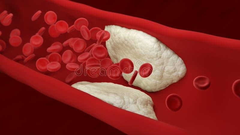 atherosclerose De plaque bouwt binnen een slagader op De cellen van het bloed stock illustratie