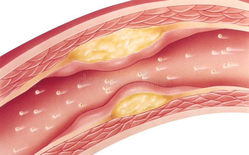 Atherosclerose - schwer vektor abbildung