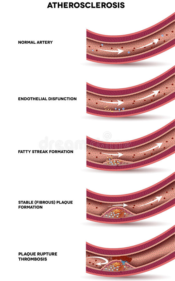 Atherosclerosestadia royalty-vrije illustratie